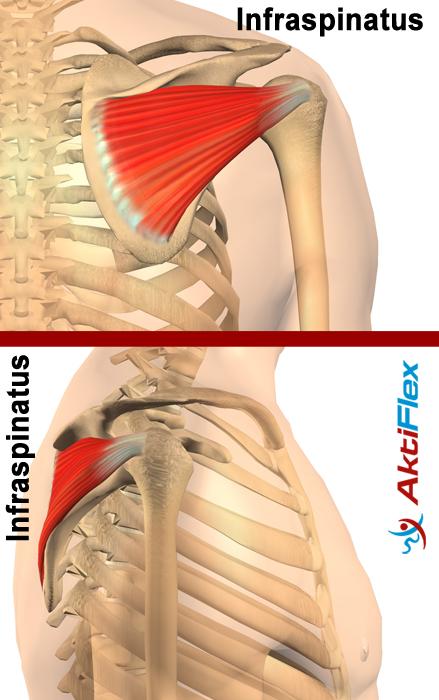 Die muskuläre Dysbalance der Schulter erklärt von Schulterhilfe.de