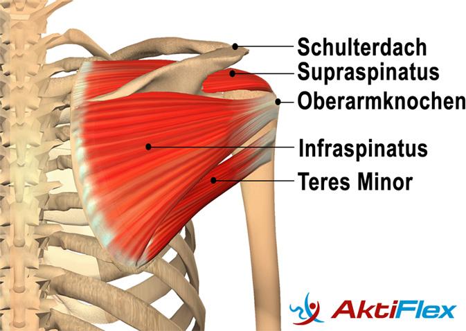▷ Das Impingement-syndrom der Schulter - Erklärungen und gezielte Hilfe